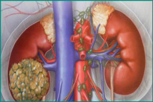 Рак почки и метастазы: симптомы