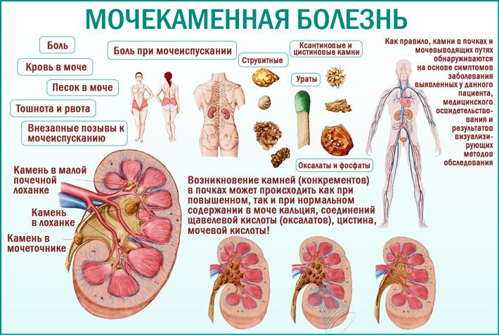 Мочекаменная болезнь (уролитиаз)