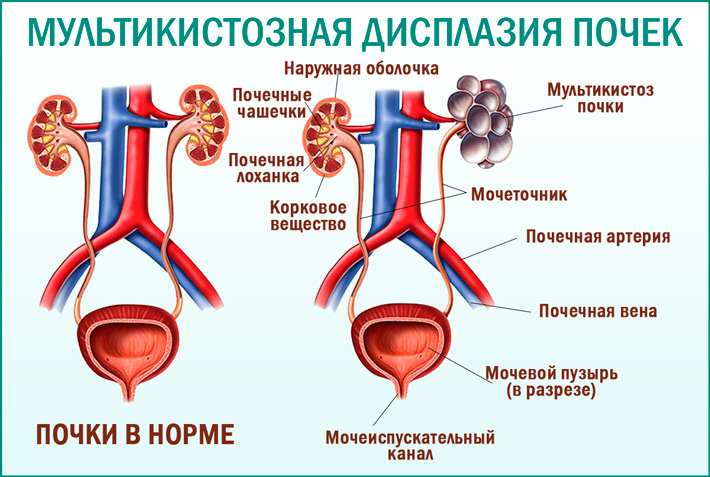 Мультикистозная дисплазия почки и ее лечение