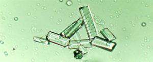 Образование солевых кристаллов в моче