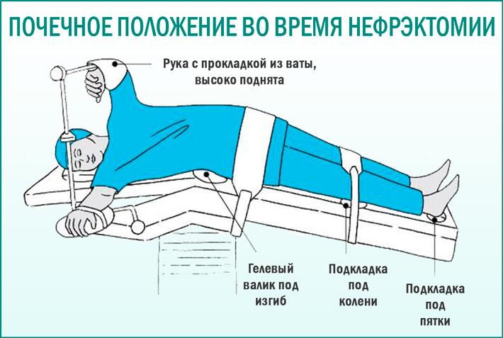 Операции на почке