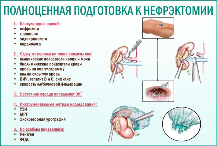 Нефрэктомия (удаление почки): полноценная подготовка