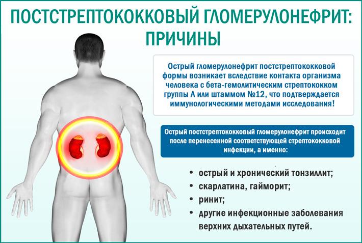 Острый постстрептококковый (постинфекционный) гломерулонефрит: причины