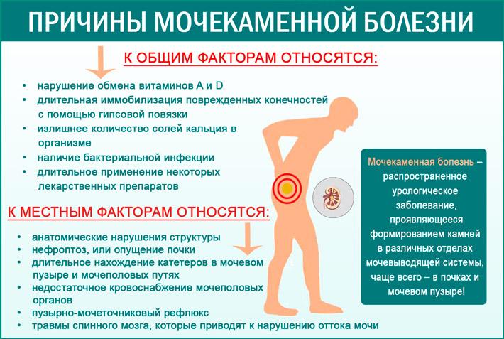 Мочекаменная болезнь: причины