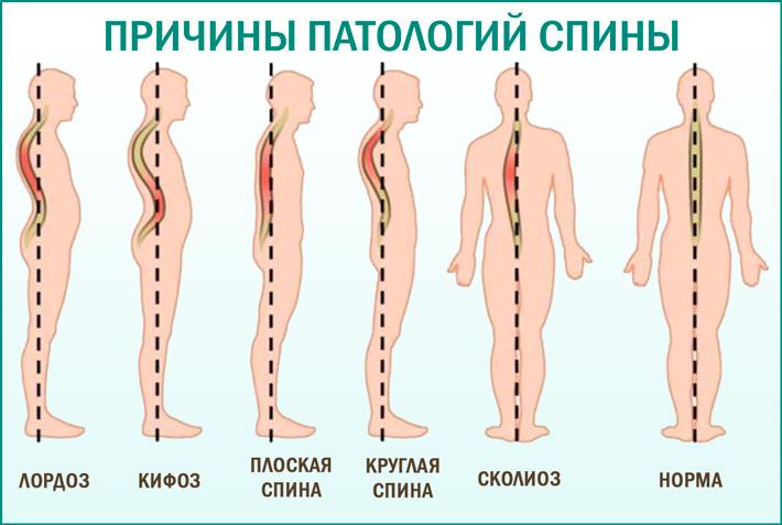 Боли в спине и пояснице: причины