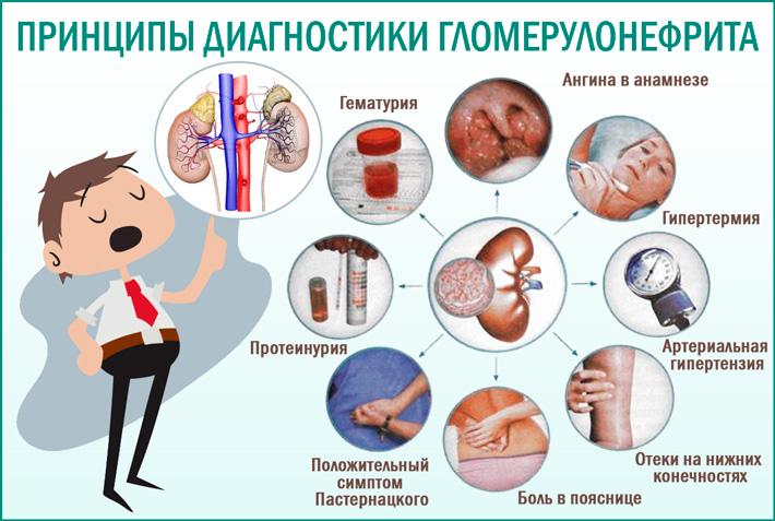Гломерулонефрит: принципы диагностики