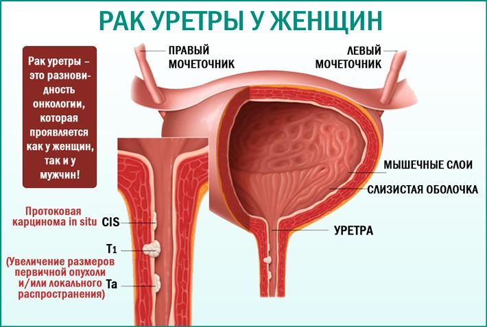Рак уретры у женщин: симптомы