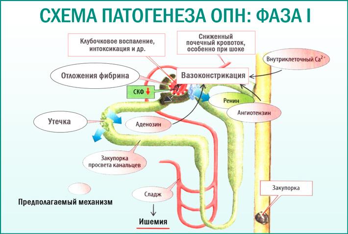 Схема патогенеза острой почечной недостаточности