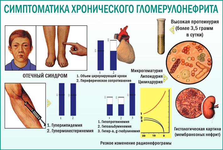 Симптомы хронического гломерулонефрита