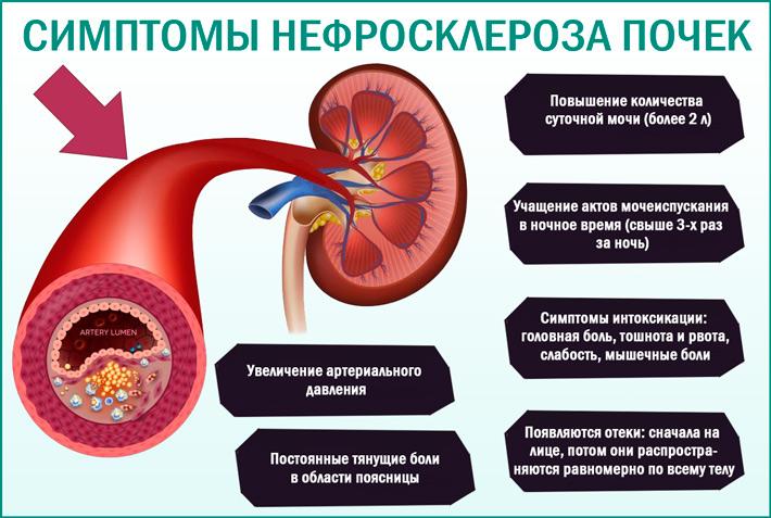 Симптомы нефросклероза