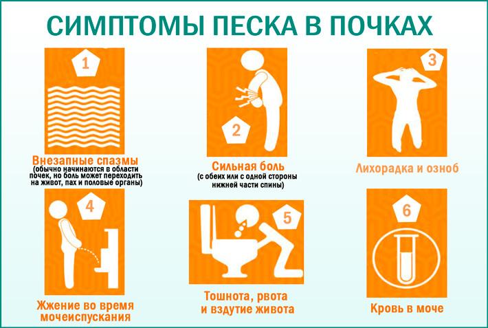 Песок в почках: симптомы