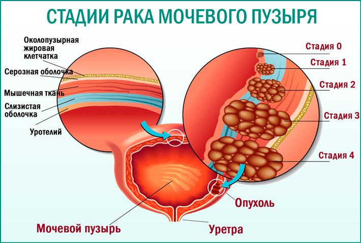 Рак мочевого пузыря: cтадии рака