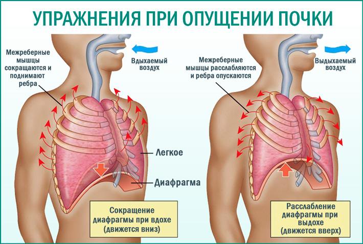 Упражнения при опущении почки для поднятия и лечения