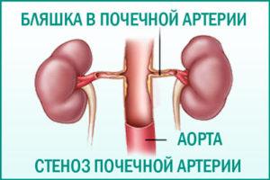 Кистозная дисплазия почек