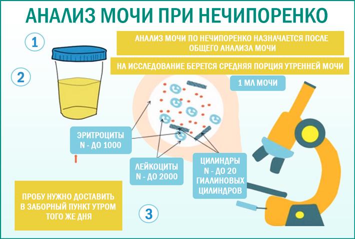 Анализ мочи по Нечипоренко: расшифровка