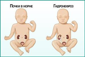 Гидронефроз у ребенка