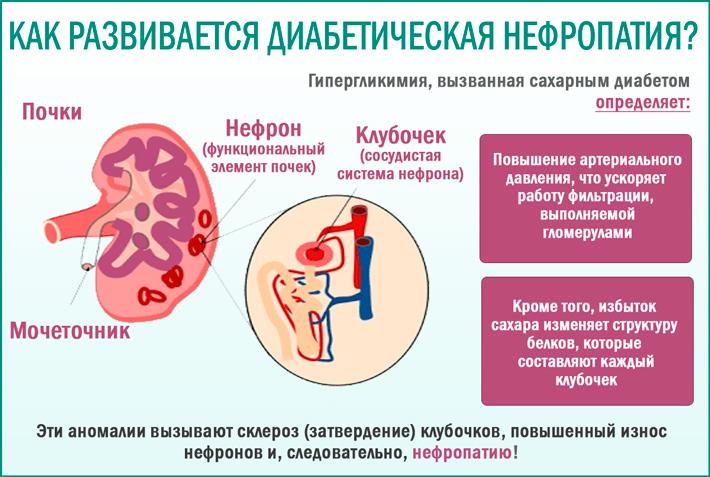 Диабетическая нефропатия: как развивается заболевание
