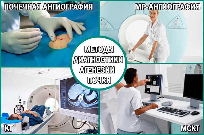 Современные методы диагностики агенезии (аплазии) почки