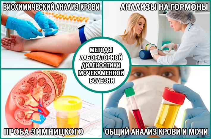 Лабораторная диагностика мочекаменной болезни