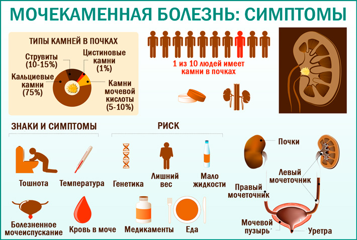 Симптомы проявления мочекаменной болезни