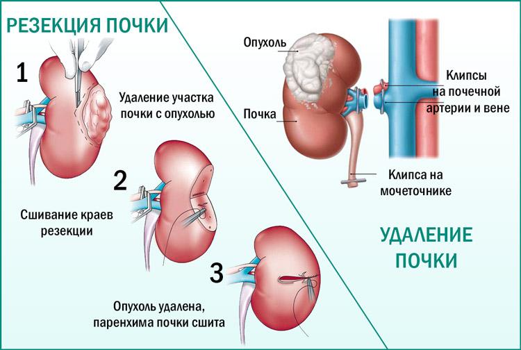 Операции при опухоли почки