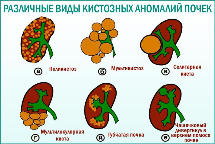 Кистозные аномалии почек