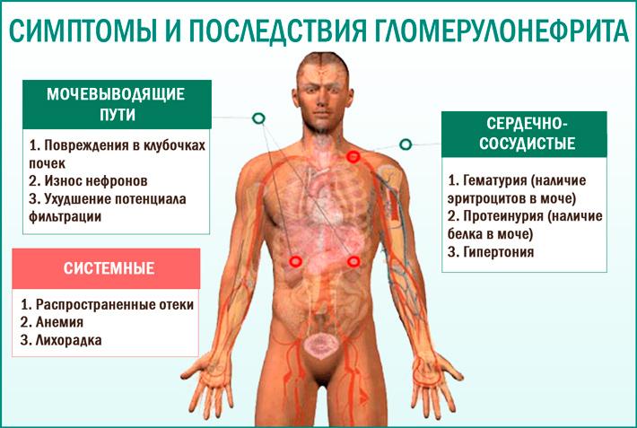 Какие могут быть последствия гломерулонефрита