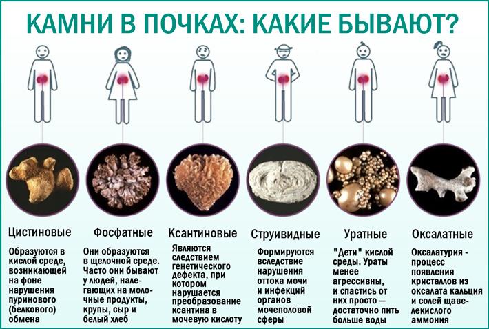 Камни в почках: причины появления