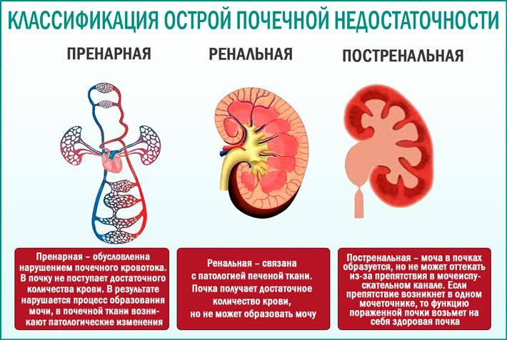 Острое повреждение почек: классификация