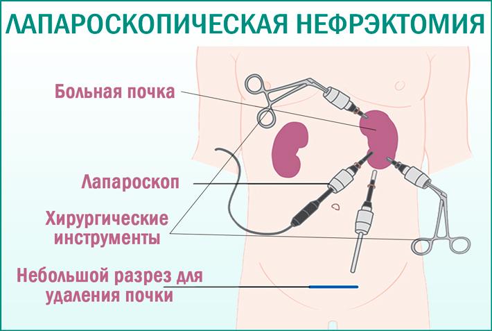 Лапароскопическая нефрэктомия: показания
