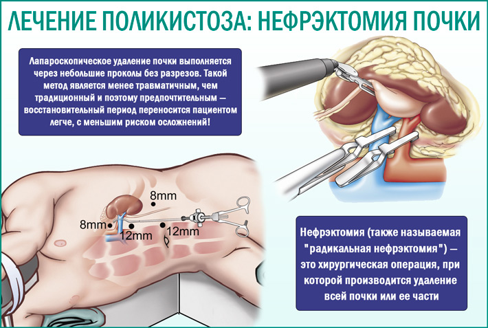 Нефрэктомия почки