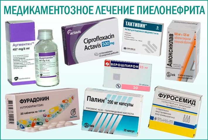 Пиелонефрит: медикаментозное лечение заболевания