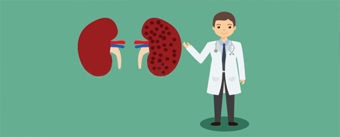 Нефропатия: лечение болезни