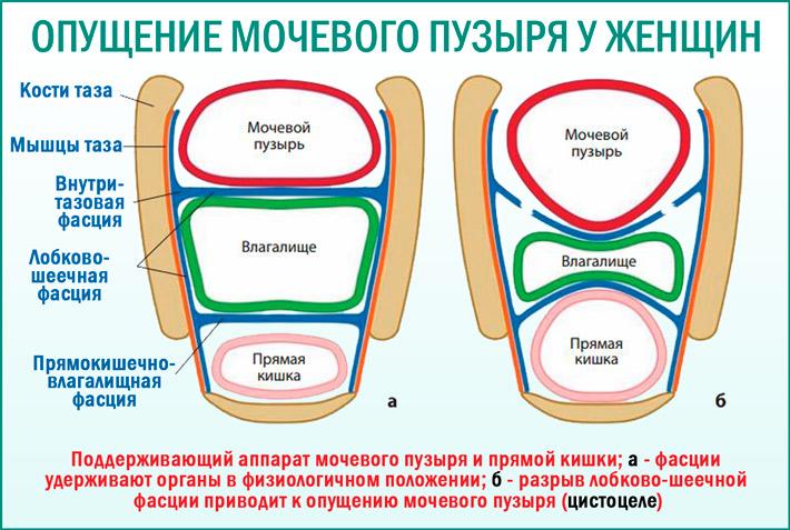 Цистоцеле (опущение мочевого пузыря)