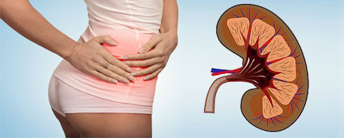 Пиелонефрит: симптомы, лечение, осложнения пиелонефрита