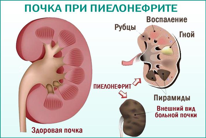 Острый пиелонефрит: симптомы