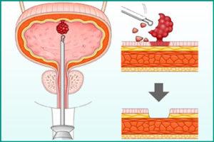 Трансуретральная резекция мочевого пузыря (ТУР)