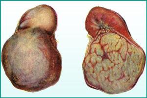 Фиброма почки: лечить или предотвратить?