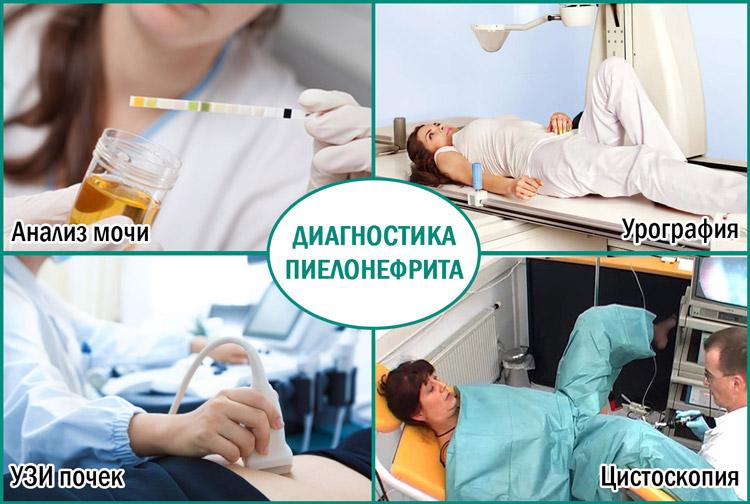 Проведение диагностики пиелонефрита