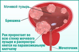 Рак мочевого пузыря: симптомы