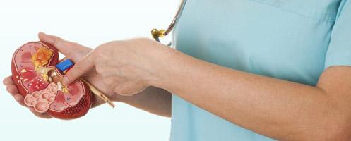 Пути лечения поликистоза почек и риск осложнений