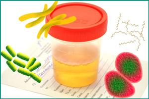 Бактериурия