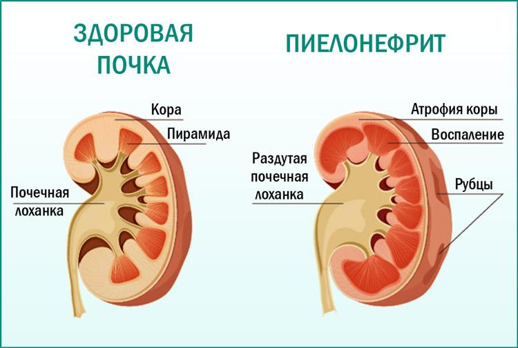Воспаление почки