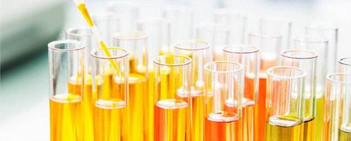 Анализы при пиелонефрите: исследования мочи