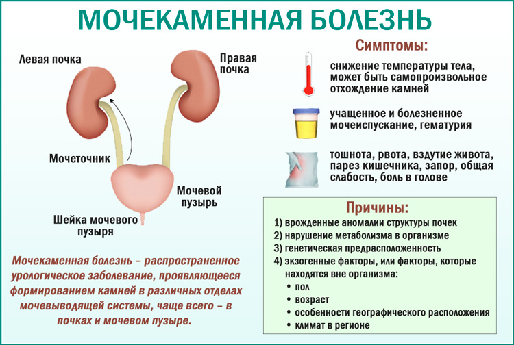 Мочекаменная болезнь: симптомы