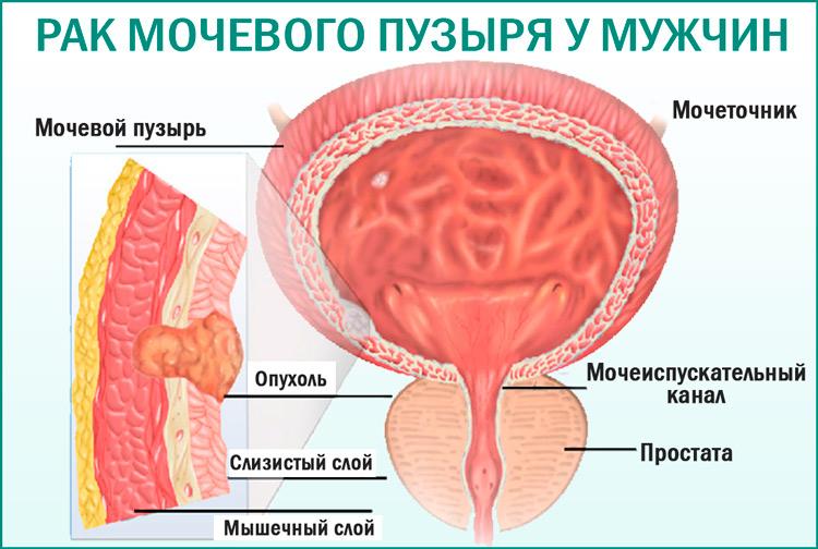 Рак мочевого пузыря у мужчин: признаки