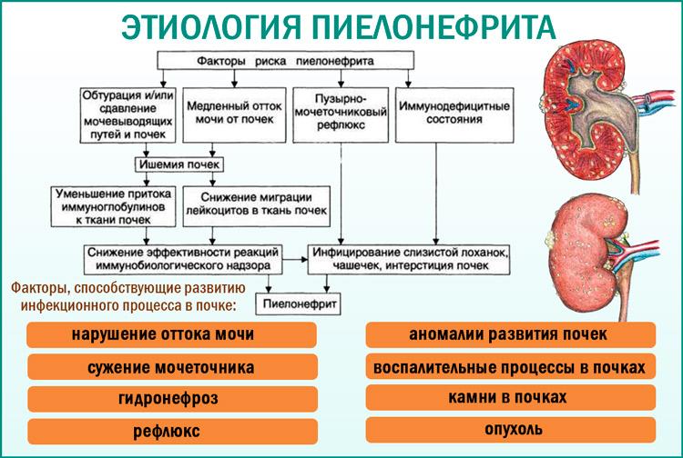 Пиелонефрит. Этиология. Патогенез