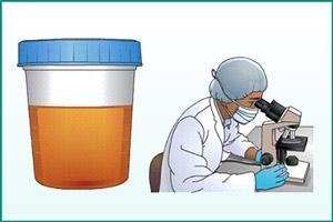 Анализ мочи на пиелонефрит