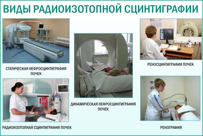 Виды радиоизотопной сцинтиграфии