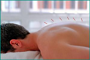 Лечение потенции иглоукалыванием
